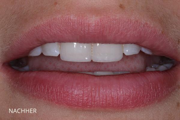 Zähneknirschen und Säureschäden: nach der Behandlung mit Kompositveneers