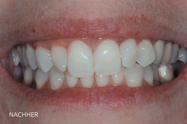 Ästhetische Zahnmedizin: Lückenschluss mit Komposit, nach der Behandlung