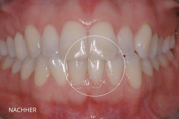 Ästhetische Zahnmedizin: internes Bleaching, nach der Behandlung