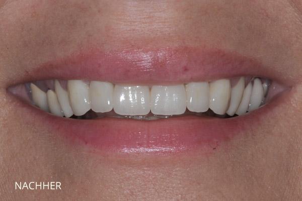 Ästhetische Zahnmedizin: nach der Behandlung durch Veneers und vollkeramische Teilkronen