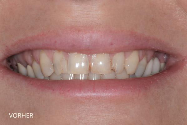 Ästhetische Zahnmedizin: vor der Behandlung durch Veneers und vollkeramische Teilkronen